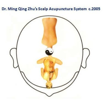 zhus-scalp-acupuncture